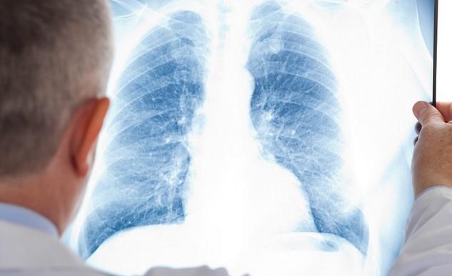 «Viagra» ayuda a mejorar el bienestar de los pacientes con fibrosis pulmonar